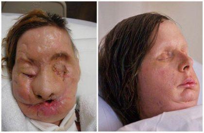 На неё набросился шимпанзе! И вот, как она выглядит после пересадки лица